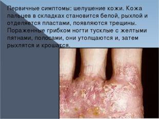 Первичные симптомы: шелушение кожи. Кожа пальцев в складках становится белой,