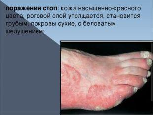 поражения стоп: кожа насыщенно-красного цвета, роговой слой утолщается, стано