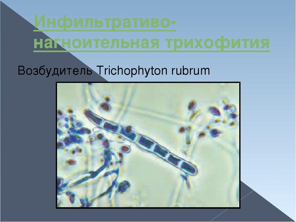 Инфильтративо-нагноительная трихофития Возбудитель Trichophyton rubrum