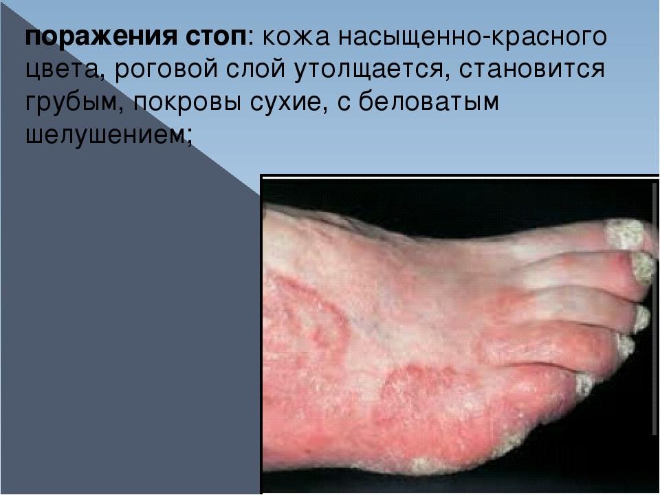 поражения стоп: кожа насыщенно-красного цвета, роговой слой утолщается, стано...