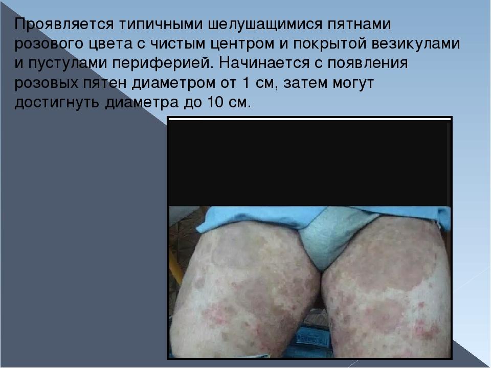 Проявляется типичными шелушащимися пятнами розового цвета с чистым центром и...
