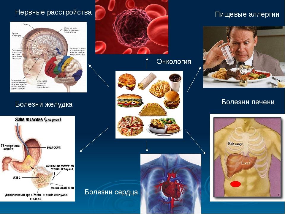 Болезни желудка Болезни печени Пищевые аллергии Нервные расстройства Болезни...