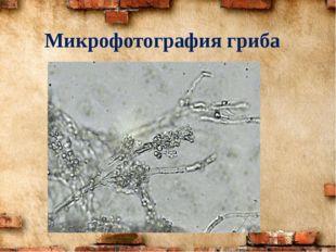 Микрофотография гриба