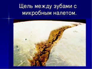 Щель между зубами с микробным налетом.
