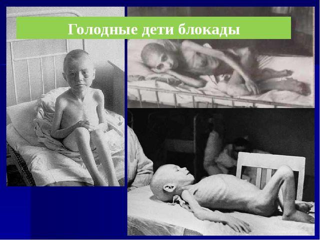 Голодные дети блокады