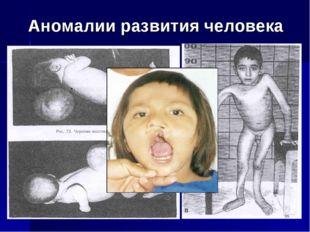 Аномалии развития человека *