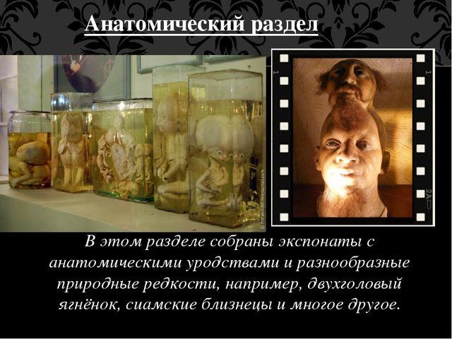 Анатомический раздел В этом разделе собраны экспонаты с анатомическими уродст...