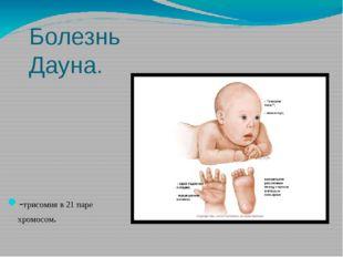 Болезнь Дауна. -трисомия в 21 паре хромосом.