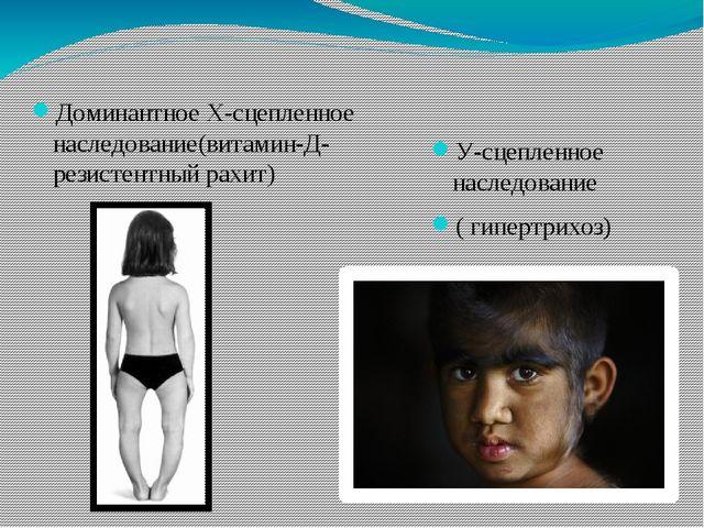 Доминантное Х-сцепленное наследование(витамин-Д-резистентный рахит) У-сцепле...