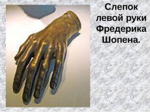 Слепок левой руки Фредерика Шопена.