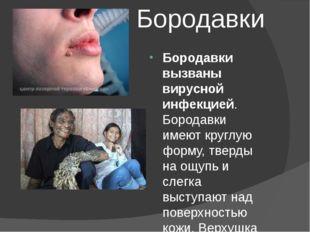 Бородавки Бородавки вызваны вирусной инфекцией. Бородавки имеют круглую форму