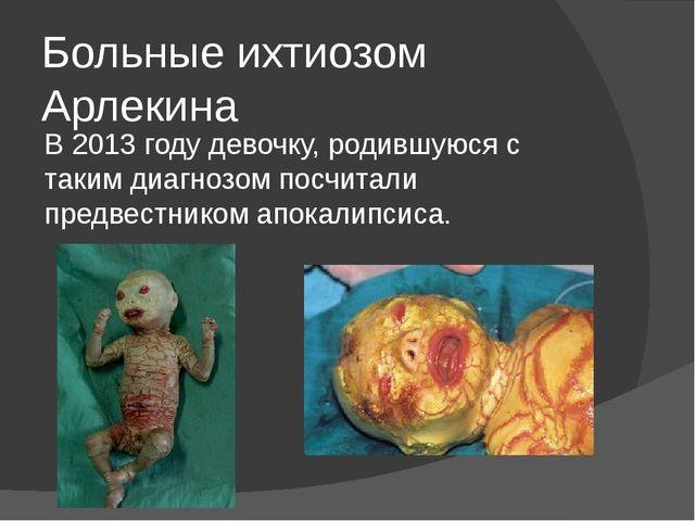 Больные ихтиозом Арлекина В 2013 году девочку, родившуюся с таким диагнозом п...