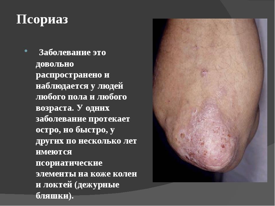 Псориаз Заболевание это довольно распространено и наблюдается у людей любого...