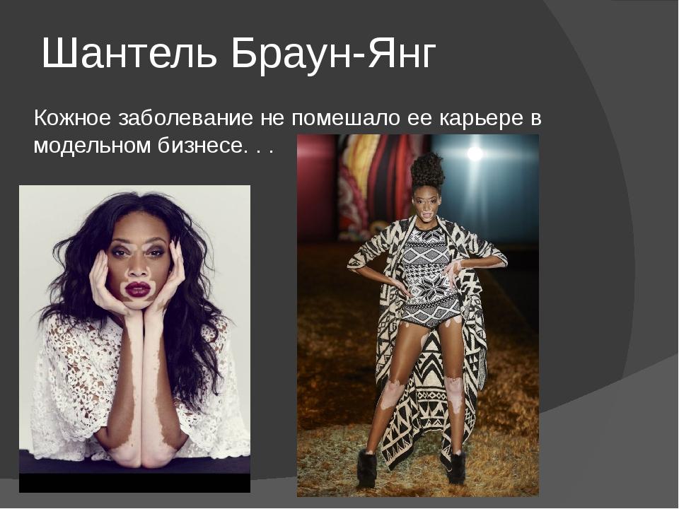 Шантель Браун-Янг Кожное заболевание не помешало ее карьере в модельном бизне...