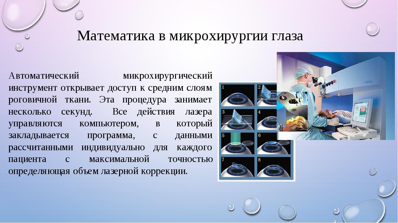 Математика в микрохирургии глаза Автоматический микрохирургический инструмент...