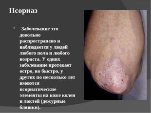 Псориаз Заболевание это довольно распространено и наблюдается у людей любого