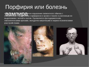 Порфирия или болезнь вампира почти всегда наследственное нарушение пигментног