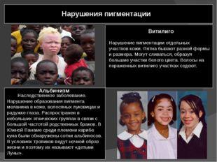Нарушения пигментации Альбинизм Наследственное заболевание. Нарушение образо