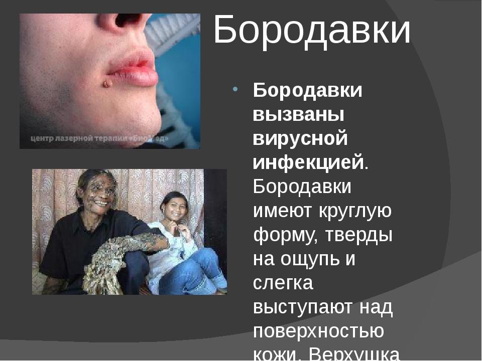 Бородавки Бородавки вызваны вирусной инфекцией. Бородавки имеют круглую форму...