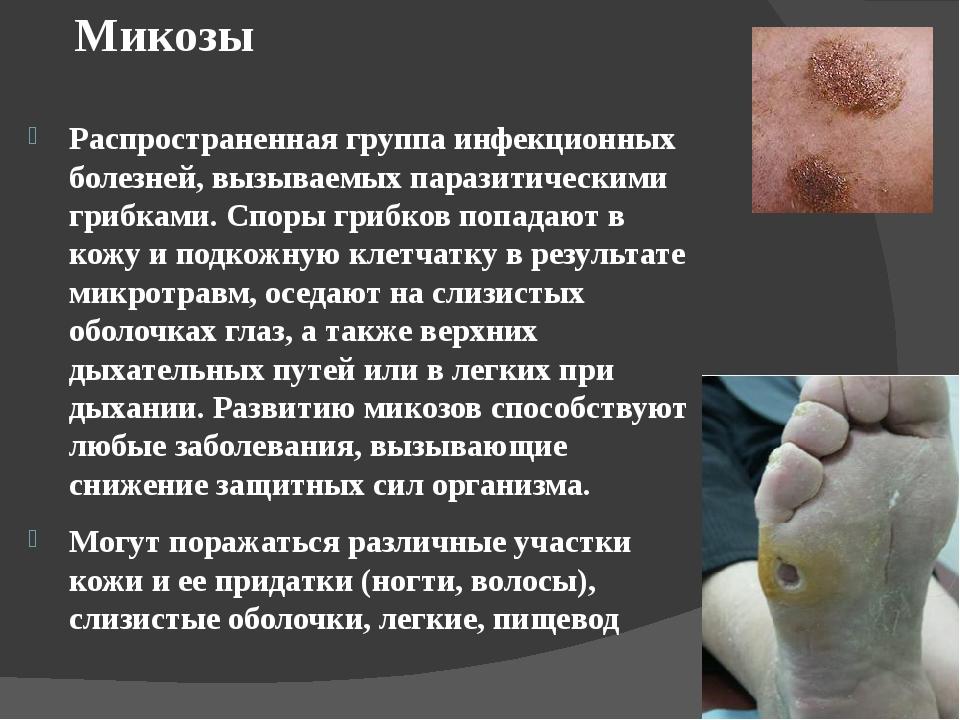 Микозы Распространенная группа инфекционных болезней, вызываемых паразитичес...