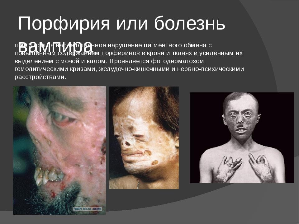 Порфирия или болезнь вампира почти всегда наследственное нарушение пигментног...
