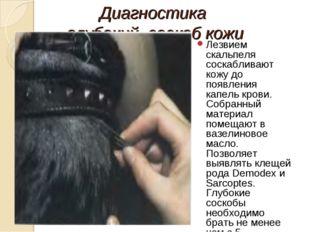 Диагностика глубокий соскоб кожи Лезвием скальпеля соскабливают кожу до появл