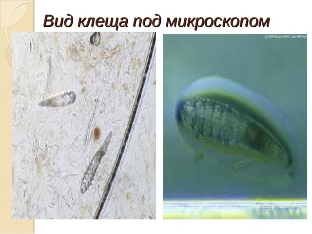 Вид клеща под микроскопом