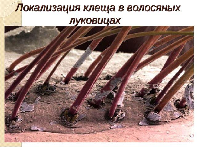Локализация клеща в волосяных луковицах