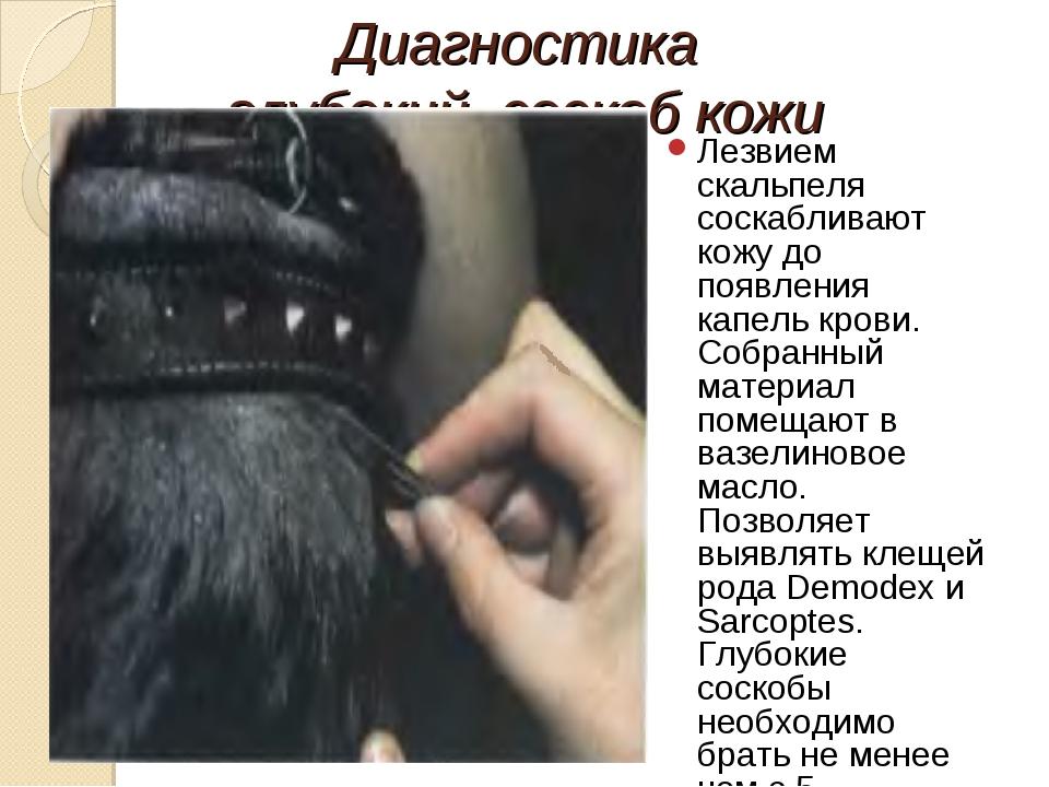 Диагностика глубокий соскоб кожи Лезвием скальпеля соскабливают кожу до появл...