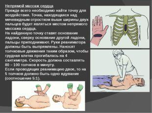 Непрямой массаж сердца Прежде всего необходимо найти точку для воздействия. Т