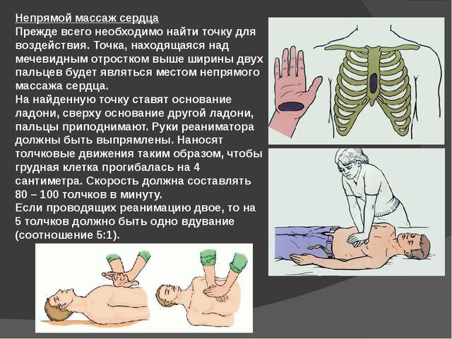 Непрямой массаж сердца Прежде всего необходимо найти точку для воздействия. Т...