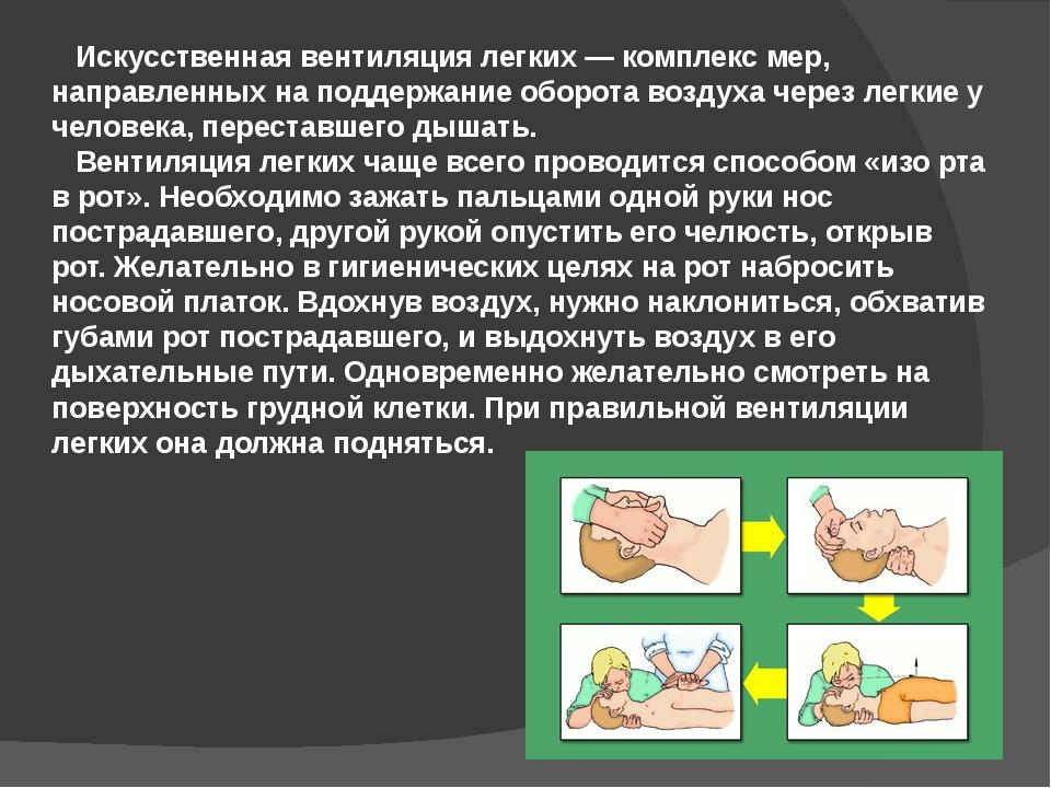 Искусственная вентиляция легких— комплекс мер, направленных на поддержание...