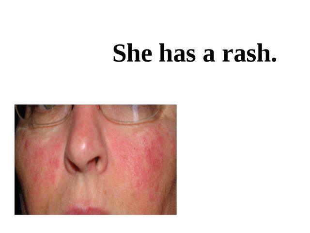 She has a rash.