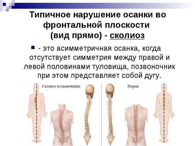 Типичное нарушение осанки во фронтальной плоскости (вид прямо) - сколиоз - эт...