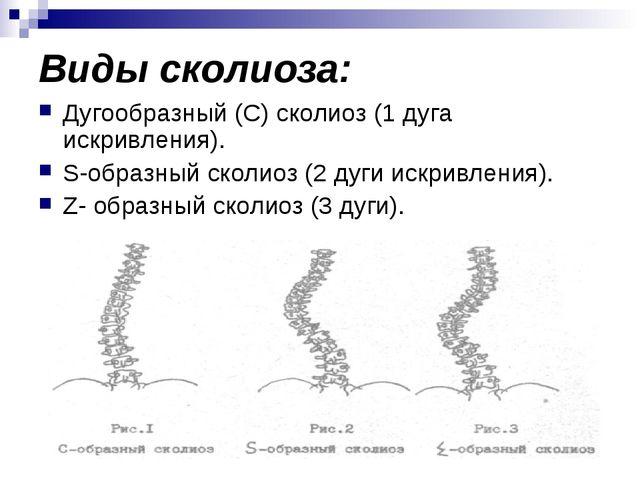 Виды сколиоза: Дугообразный (С) сколиоз (1 дуга искривления). S-образный скол...