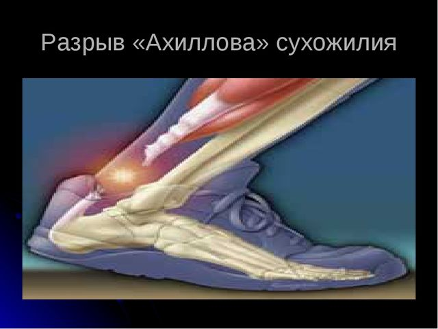 Разрыв «Ахиллова» сухожилия