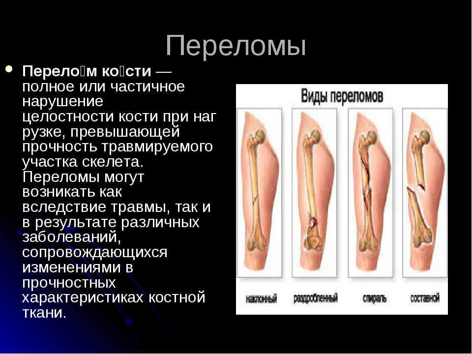 Переломы Перело́м ко́сти— полное или частичное нарушение целостностикостип...