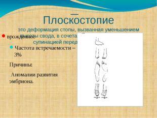 Плоскостопие это деформация стопы, вызванная уменьшением высоты свода, в соче