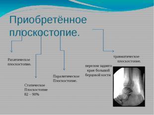 Приобретённое плоскостопие. травматическое плоскостопие. перелом заднего края