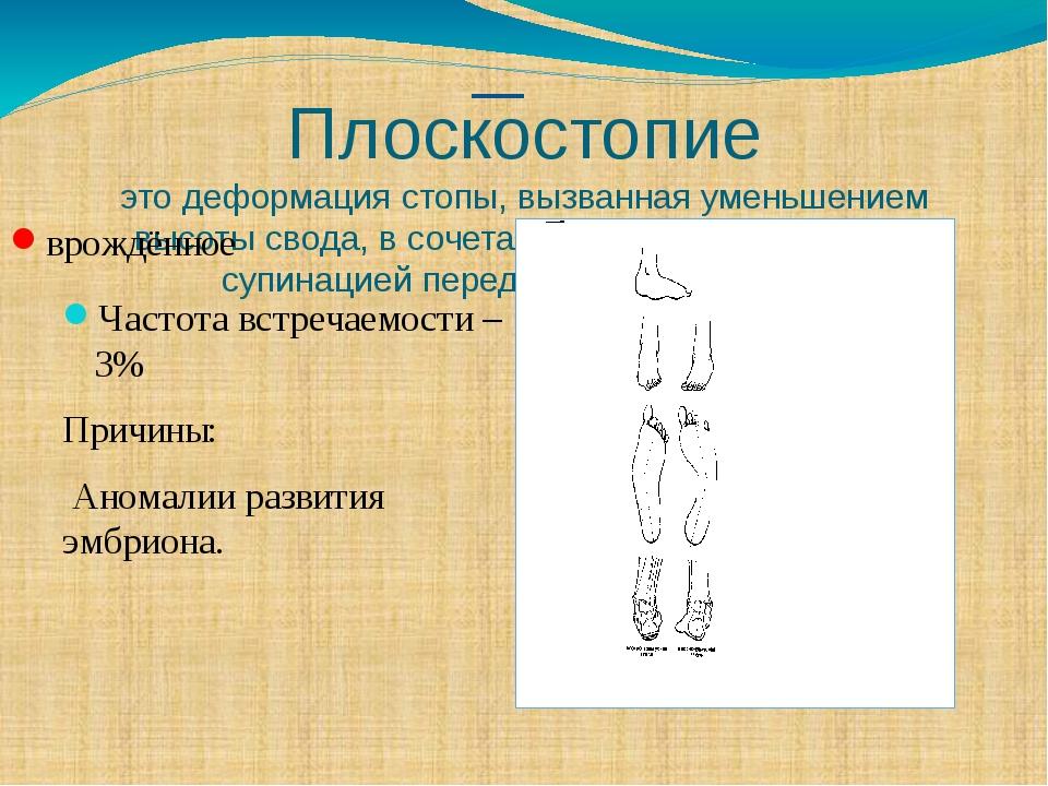 Плоскостопие это деформация стопы, вызванная уменьшением высоты свода, в соче...