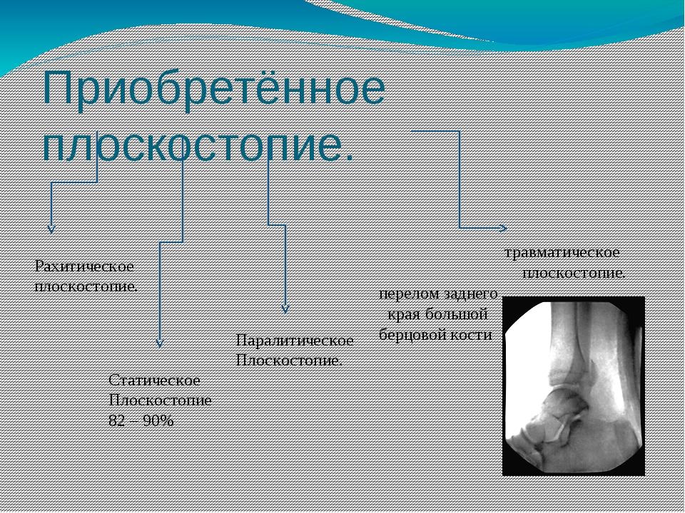 Приобретённое плоскостопие. травматическое плоскостопие. перелом заднего края...