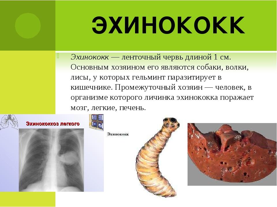 ЭХИНОКОКК Эхинококк — ленточный червь длиной 1 см. Основным хозяином его явля...