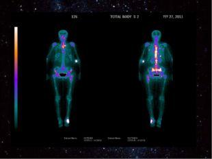 Радиоизотопная диагностика Радиоизотопная диагностика Орган можно увидеть пос
