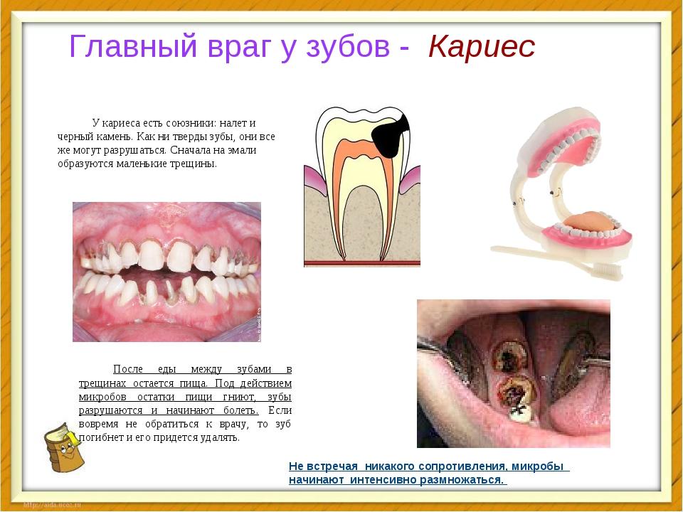 Главный враг у зубов - Кариес У кариеса есть союзники: налет и черный камень....