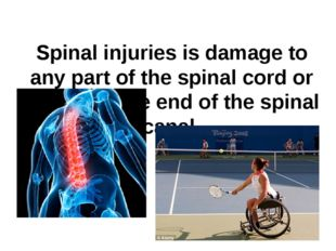Spinal injuries is damage to any part of the spinal cord or nerves at the end