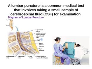A lumbar puncture is a common medical test that involves taking a small sampl
