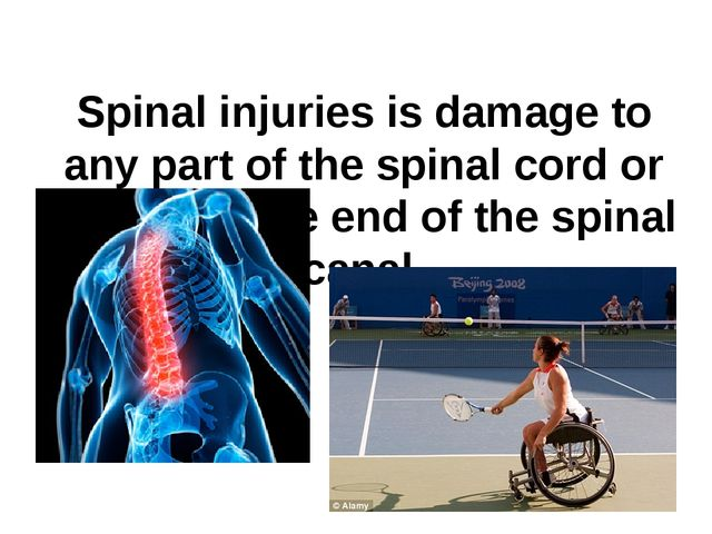 Spinal injuries is damage to any part of the spinal cord or nerves at the end...