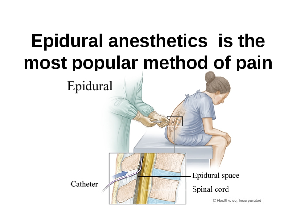 Epidural anesthetics is the most popular method of pain relief during labor.