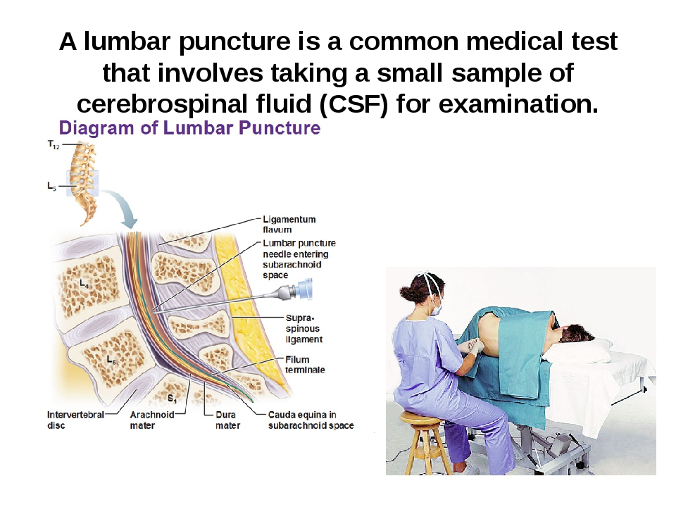 A lumbar puncture is a common medical test that involves taking a small sampl...