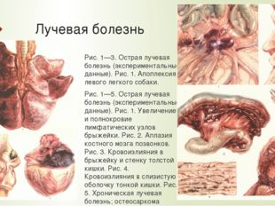 Лучевая болезнь Рис. 1—3. Острая лучевая болезнь (экспериментальные данные).